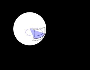 SphereLine15